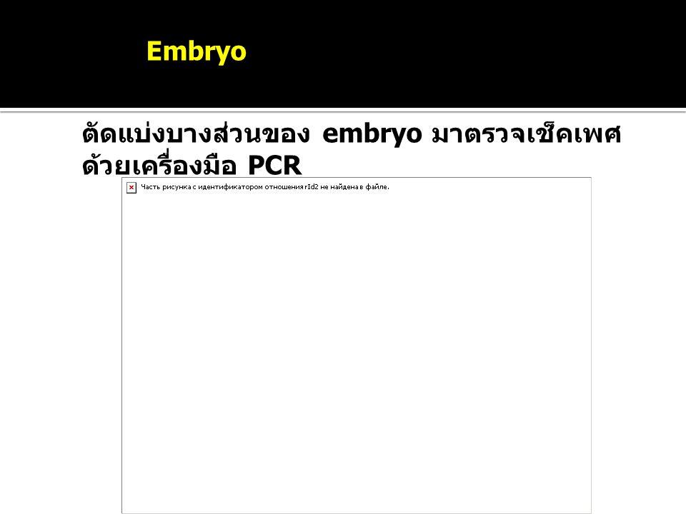 Sexing Embryo ตัดแบ่งบางส่วนของ embryo มาตรวจเช็คเพศ ด้วยเครื่องมือ PCR