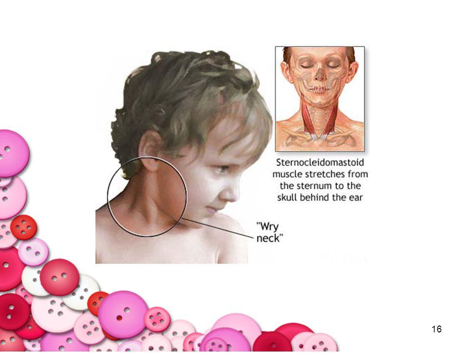 17 4.Tardive dyskinesia : การ เคลื่อนไหวผิดปกติ อาการดูดริมฝีปาก การเคลื่อนไหวผิดปกติ ที่ไม่มี วัตถุประสงค์ แนวทางการแนะนำเบื้องต้น - กรณีที่เป็นแต่แรกๆ ให้ส่งพบจิตแพทย์ ซึ่งอาจจะช่วยทำ ให้อาการหายไปได้ - จิตแพทย์จะพิจารณา เปลี่ยนยาเป็น Atypical antipsychotic (Clozapine)