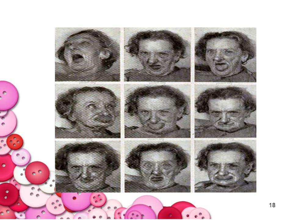 19 Sedation : ง่วงนอน ผลจากการ block Histamine receptor แนวทางการแนะนำเบื้องต้น -หากจำเป็นต้องลดยาจริงๆ ตัวที่ลดได้ได้แก่ Diazepam, Lorazepam, Chlodiazepoxide, Chlopromazine, thioridazine - หลีกเลี่ยงการลดยา Perphennazine, Haloperidol, Trifluoperazine, Clozapine, Risperidone เพราะ อาการทางจิตอาจกำเริบ แนะนำผู้ป่วยหรือญาติแจ้งจิตแพทย์เมื่อมาตรวจ