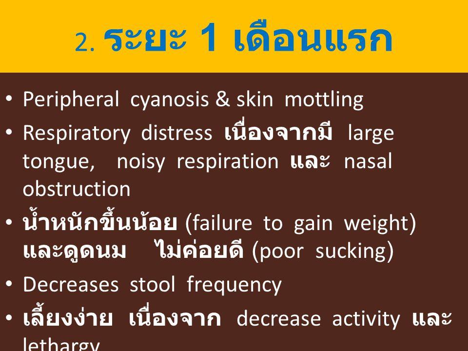 2. ระยะ 1 เดือนแรก Peripheral cyanosis & skin mottling Respiratory distress เนื่องจากมี large tongue, noisy respiration และ nasal obstruction น้ำหนักข