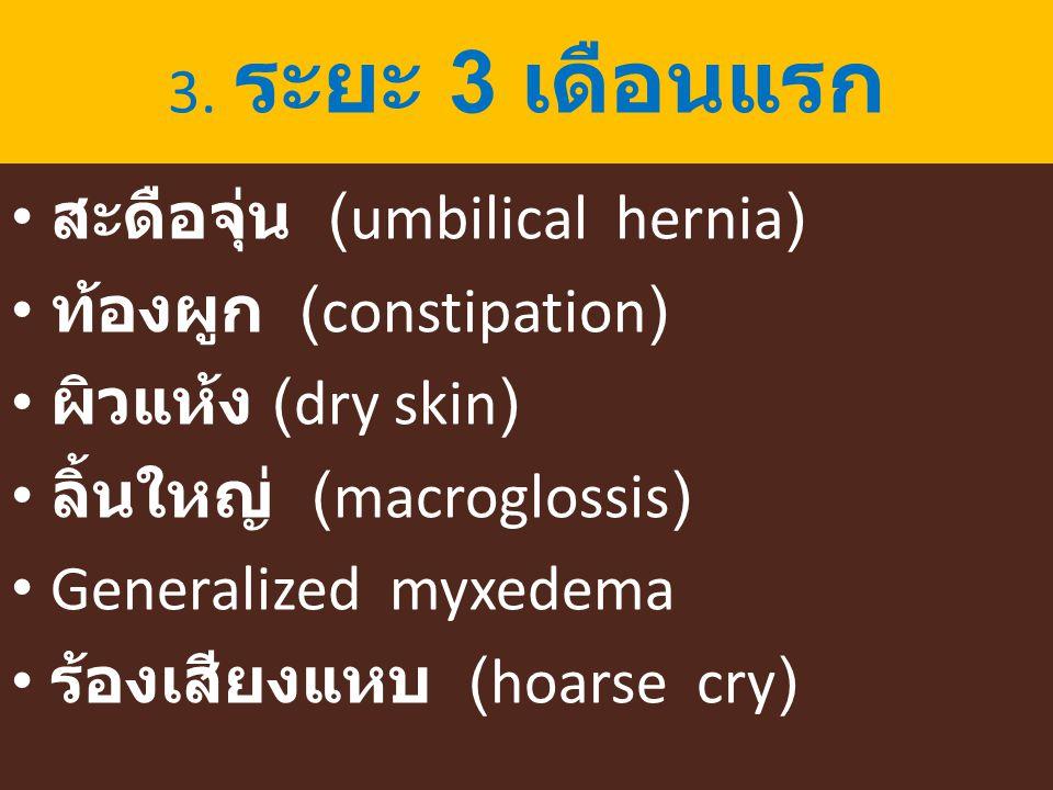 3. ระยะ 3 เดือนแรก สะดือจุ่น (umbilical hernia) ท้องผูก (constipation) ผิวแห้ง (dry skin) ลิ้นใหญ่ (macroglossis) Generalized myxedema ร้องเสียงแหบ (h