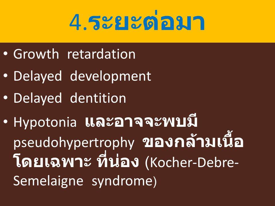 4. ระยะต่อมา Growth retardation Delayed development Delayed dentition Hypotonia และอาจจะพบมี pseudohypertrophy ของกล้ามเนื้อ โดยเฉพาะ ที่น่อง (Kocher-