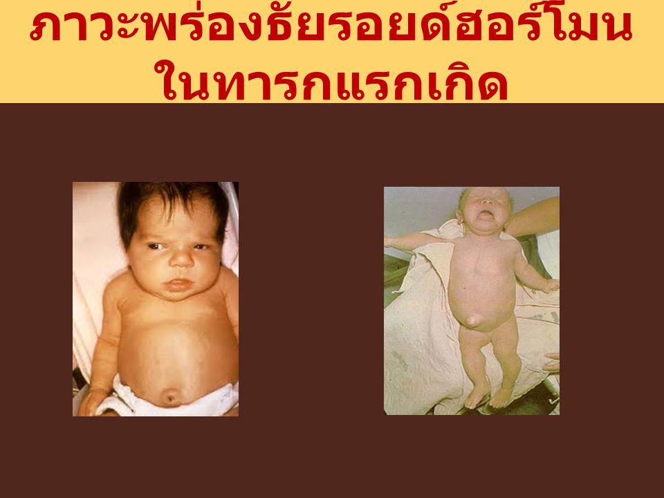 ภาวะพร่องธัยรอยด์ฮอร์โมน ในทารกแรกเกิด