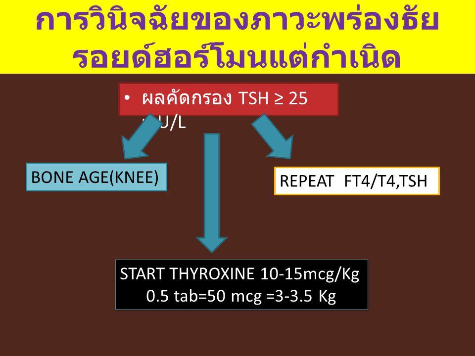 การวินิจฉัยของภาวะพร่องธัย รอยด์ฮอร์โมนแต่กำเนิด ผลคัดกรอง TSH ≥ 25 mU/L BONE AGE(KNEE) REPEAT FT4/T4,TSH START THYROXINE 10-15mcg/Kg 0.5 tab=50 mcg =
