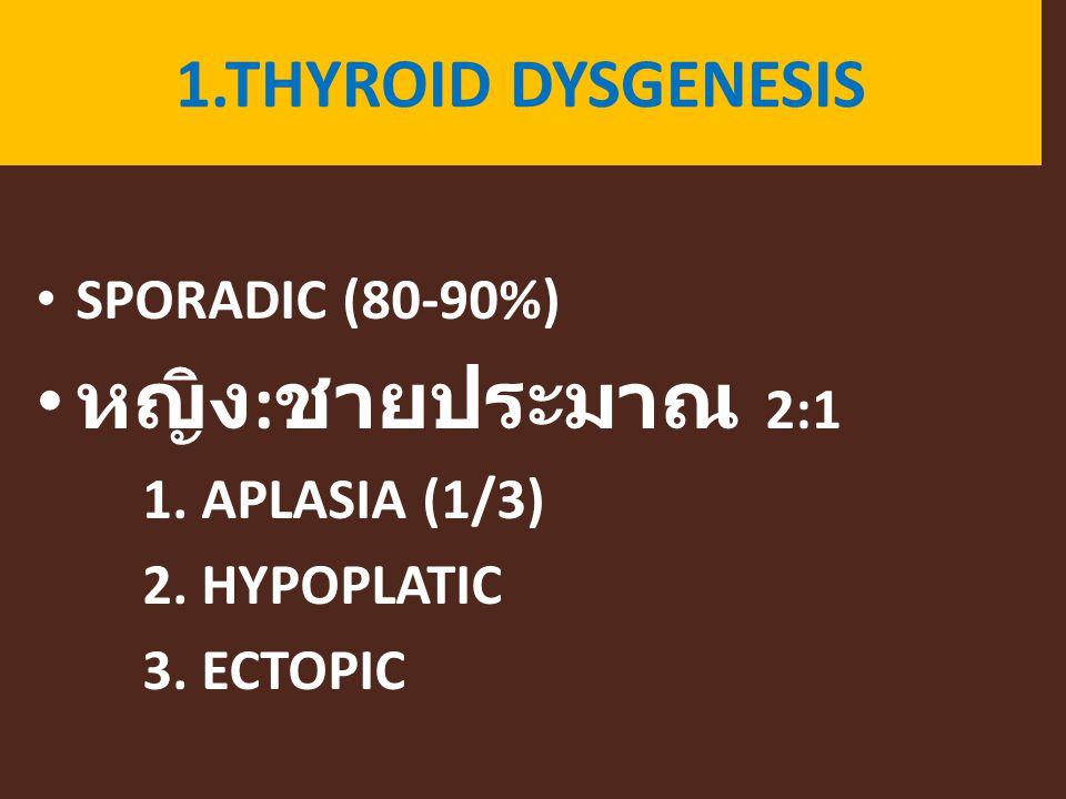 1.THYROID DYSGENESIS SPORADIC (80-90%) หญิง : ชายประมาณ 2:1 1. APLASIA (1/3) 2. HYPOPLATIC 3. ECTOPIC
