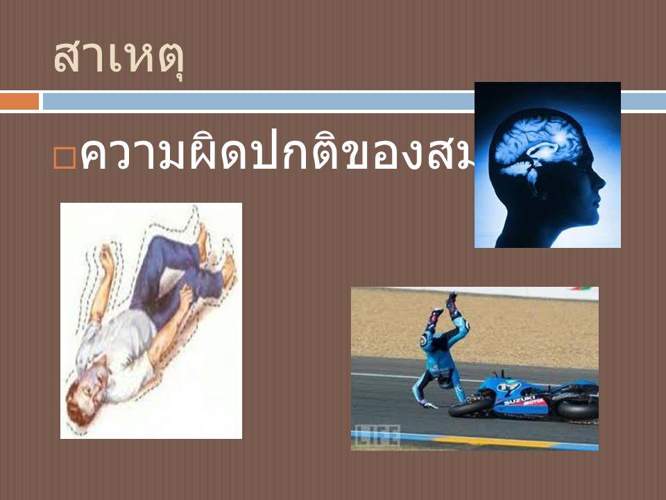 สาเหตุ  ความผิดปกติของสมอง