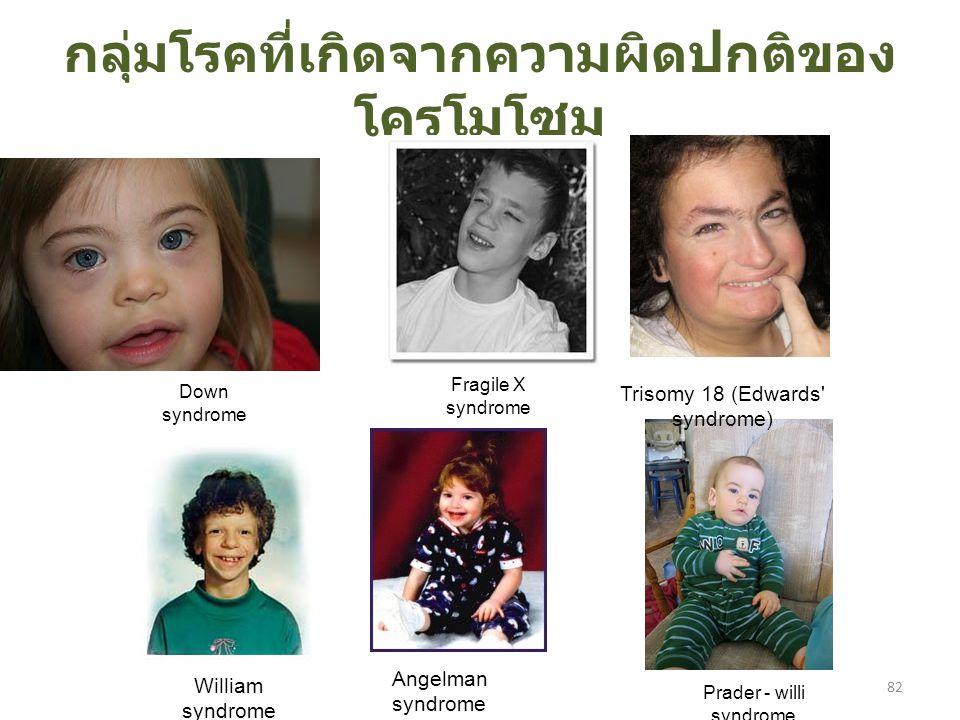 กลุ่มโรคที่เกิดจากความผิดปกติของ โครโมโซม Down syndrome William syndrome Angelman syndrome Trisomy 18 (Edwards syndrome) Fragile X syndrome Prader - willi syndrome 82