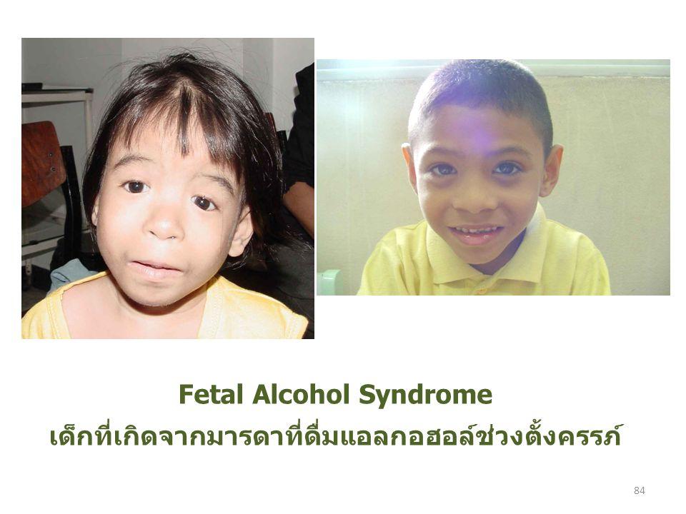 Fetal Alcohol Syndrome เด็กที่เกิดจากมารดาที่ดื่มแอลกอฮอล์ช่วงตั้งครรภ์ 84