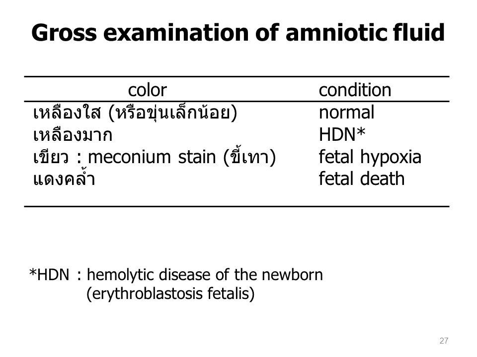 colorcondition เหลืองใส (หรือขุ่นเล็กน้อย)normal เหลืองมากHDN* เขียว : meconium stain (ขี้เทา)fetal hypoxia แดงคล้ำfetal death *HDN : hemolytic disease of the newborn (erythroblastosis fetalis) Gross examination of amniotic fluid 27