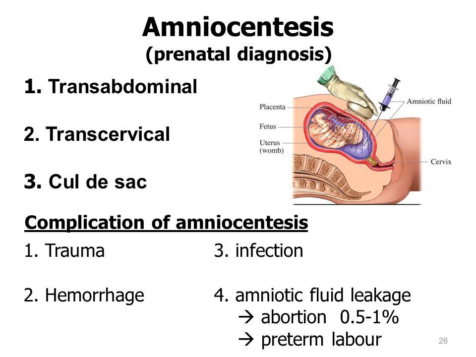 (prenatal diagnosis) Amniocentesis 1. Transabdominal 2. Transcervical 3. Cul de sac 28 1. Trauma3. infection 2. Hemorrhage4. amniotic fluid leakage 