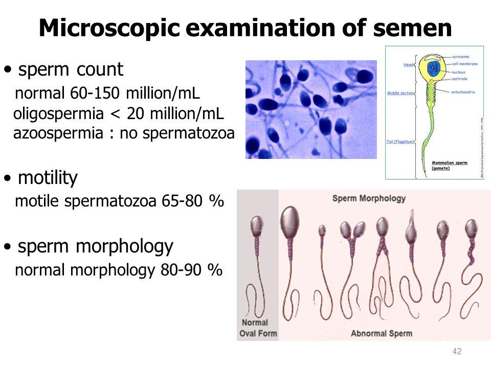 sperm count normal 60-150 million/mL oligospermia < 20 million/mL azoospermia : no spermatozoa motility motile spermatozoa 65-80 % sperm morphology normal morphology 80-90 % Microscopic examination of semen 42