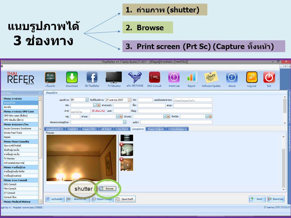 แนบรูปภาพได้ 3 ช่องทาง 1.ถ่ายภาพ (shutter) 2. Browse 3. Print screen (Prt Sc) (Capture ทั้งหน้า) shutter