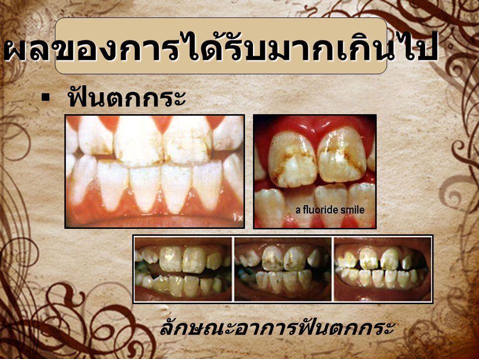 ฟันตกกระ ผลของการได้รับมากเกินไป ลักษณะอาการฟันตกกระ