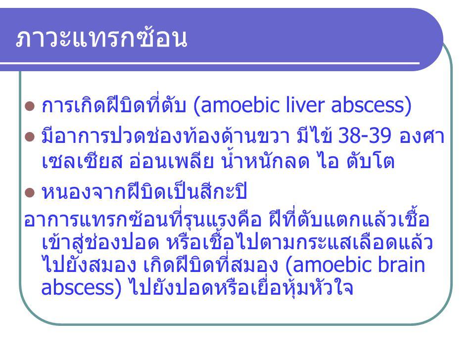 ภาวะแทรกซ้อน การเกิดฝีบิดที่ตับ (amoebic liver abscess) มีอาการปวดช่องท้องด้านขวา มีไข้ 38-39 องศา เซลเซียส อ่อนเพลีย น้ำหนักลด ไอ ตับโต หนองจากฝีบิดเ