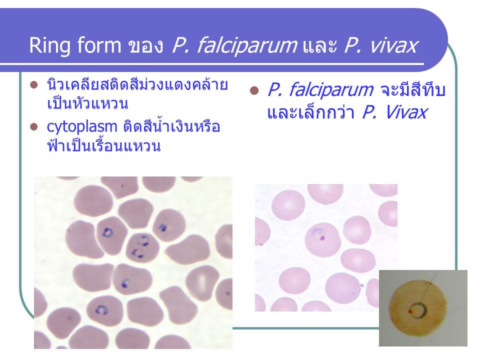 Ring form ของ P. falciparum และ P. vivax นิวเคลียสติดสีม่วงแดงคล้าย เป็นหัวแหวน cytoplasm ติดสีน้ำเงินหรือ ฟ้าเป็นเรื้อนแหวน P. falciparum จะมีสีทึบ แ