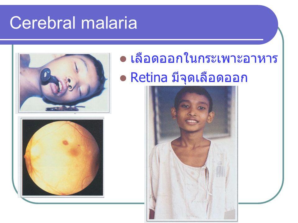 เลือดออกในกระเพาะอาหาร Retina มีจุดเลือดออก Cerebral malaria