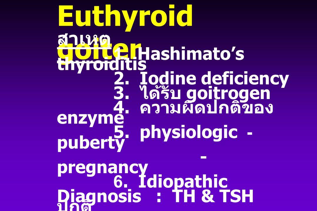 Diffuse Euthyroid goiter สาเหตุ 1. Hashimato's thyroiditis 2. Iodine deficiency 3. ได้รับ goitrogen 4. ความผิดปกติของ enzyme 5. physiologic - puberty