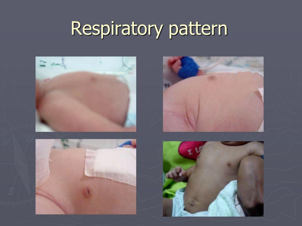 Respiratory pattern