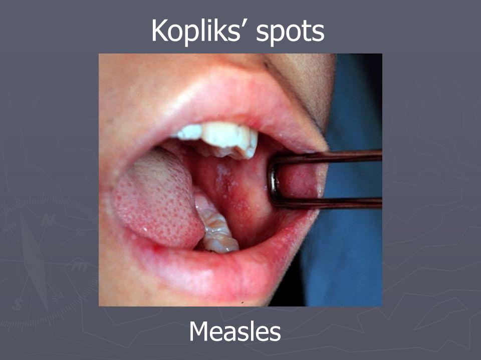 Measles Kopliks' spots