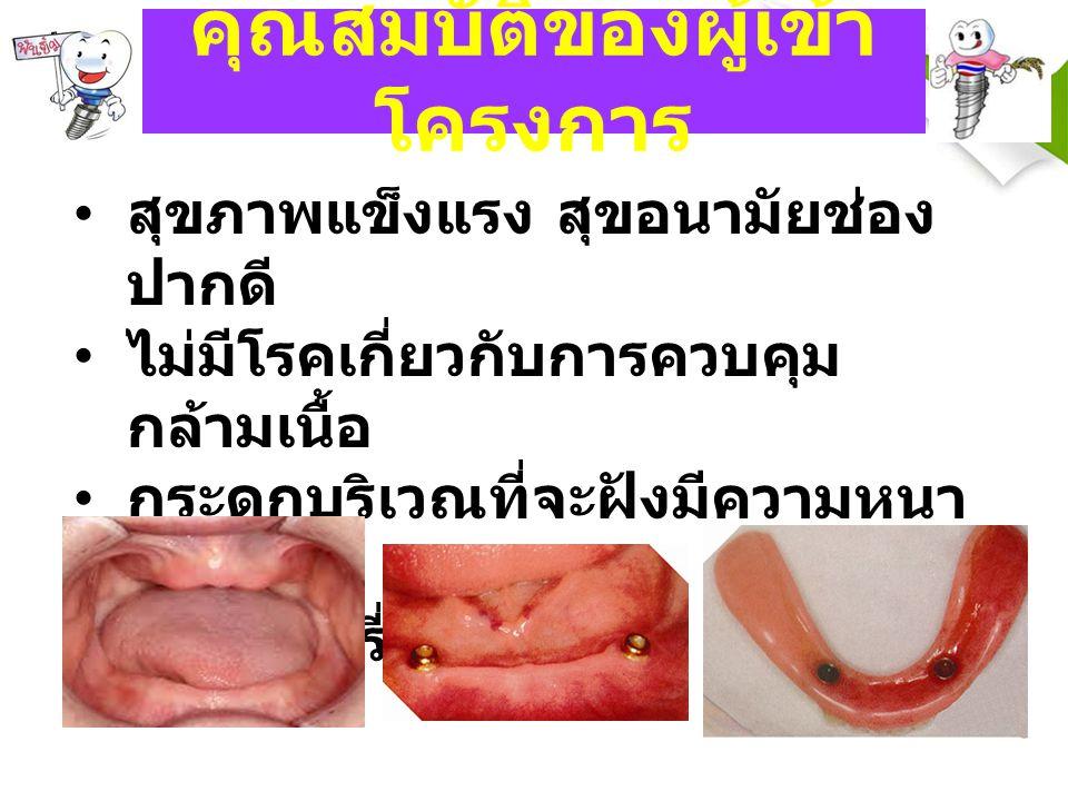 คุณสมบัติของผู้เข้า โครงการ สุขภาพแข็งแรง สุขอนามัยช่อง ปากดี ไม่มีโรคเกี่ยวกับการควบคุม กล้ามเนื้อ กระดูกบริเวณที่จะฝังมีความหนา เพียงพอ ไม่สูบบุหรี่