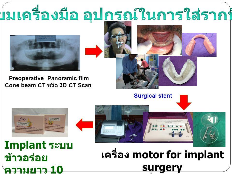 ตรวจและเตรียม ผู้ป่วย ถ่ายภาพรังสี (x-ray) ขั้นตอนการทำรากฟัน เทียม ข้าวอร่อย : 5 ครั้ง / 5-7 เดือน ผ่าตัดฝังราก ฟันเทียม 1wk.4-6 m ใส่ชิ้นส่วนที่ช่วย สร้างเบ้าเหงือก ใส่ฟันเทียมที่มี รากฟันเทียมช่วย ยึด 2-3 wk.