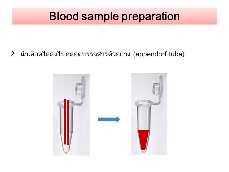 Blood sample preparation 2. นำเลือดใส่ลงในหลอดบรรจุสารตัวอย่าง (eppendorf tube)