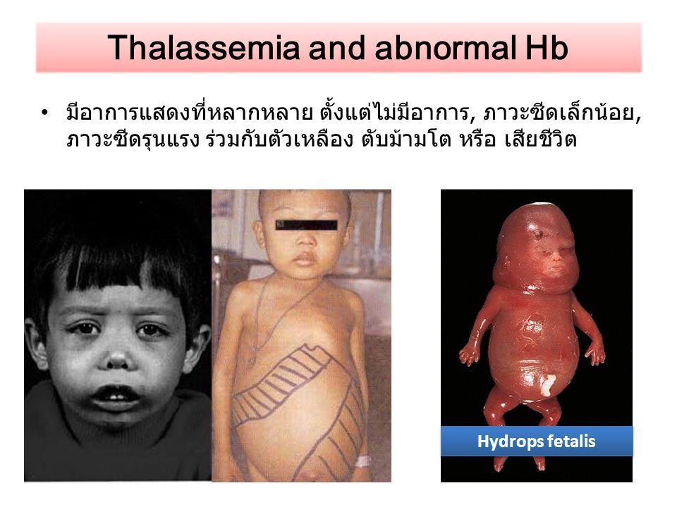 มีอาการแสดงที่หลากหลาย ตั้งแต่ไม่มีอาการ, ภาวะซีดเล็กน้อย, ภาวะซีดรุนแรง ร่วมกับตัวเหลือง ตับม้ามโต หรือ เสียชีวิต Thalassemia and abnormal Hb Hydrops