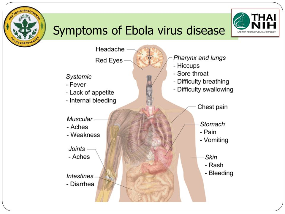 Symptoms of Ebola virus disease