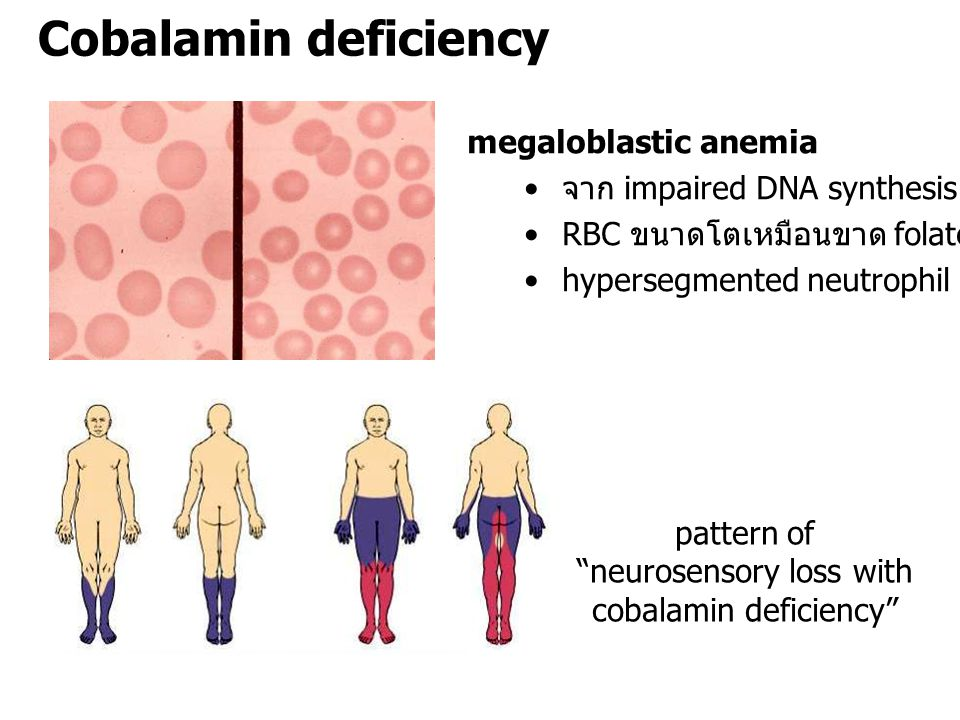 "Cobalamin deficiency pattern of ""neurosensory loss with cobalamin deficiency"" megaloblastic anemia จาก impaired DNA synthesis RBC ขนาดโตเหมือนขาด fola"