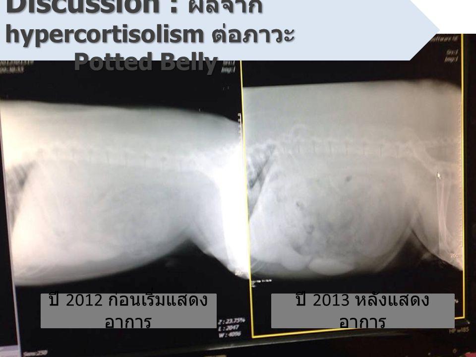 ปี 2012 ก่อนเริ่มแสดง อาการ ปี 2013 หลังแสดง อาการ Discussion : ผลจาก hypercortisolism ต่อภาวะ Potted Belly