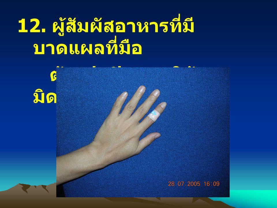 12. ผู้สัมผัสอาหารที่มี บาดแผลที่มือ ต้องปกปิดแผลให้ มิดชิด