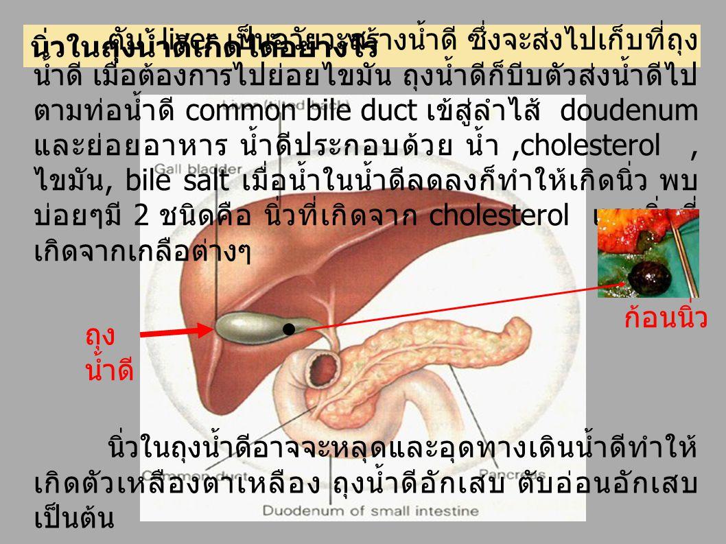นิ่วในถุงน้ำดีเกิดได้อย่างไร ตับ liver เป็นอวัยวะสร้างน้ำดี ซึ่งจะส่งไปเก็บที่ถุง น้ำดี เมื่อต้องการไปย่อยไขมัน ถุงน้ำดีก็บีบตัวส่งน้ำดีไป ตามท่อน้ำดี