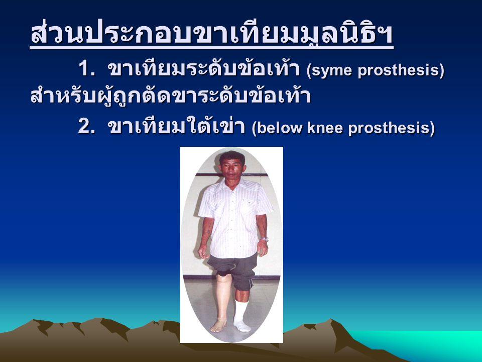 ส่วนประกอบขาเทียมมูลนิธิฯ 1. ขาเทียมระดับข้อเท้า (syme prosthesis) สำหรับผู้ถูกตัดขาระดับข้อเท้า 2. ขาเทียมใต้เข่า (below knee prosthesis)