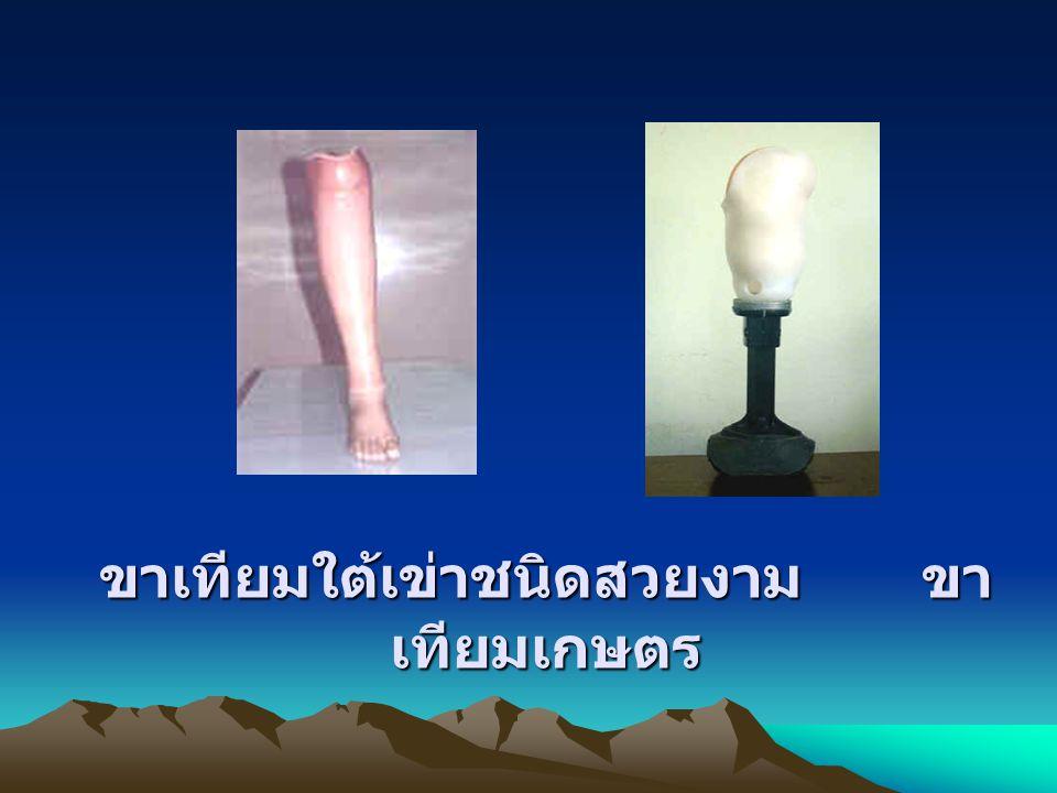3.ขาเทียมระดับข้อเข่า (knee disarticulation prosthesis) 4.