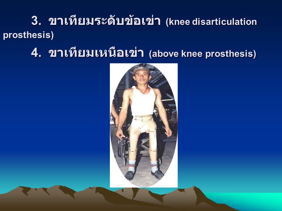 3. ขาเทียมระดับข้อเข่า (knee disarticulation prosthesis) 4. ขาเทียมเหนือเข่า (above knee prosthesis)