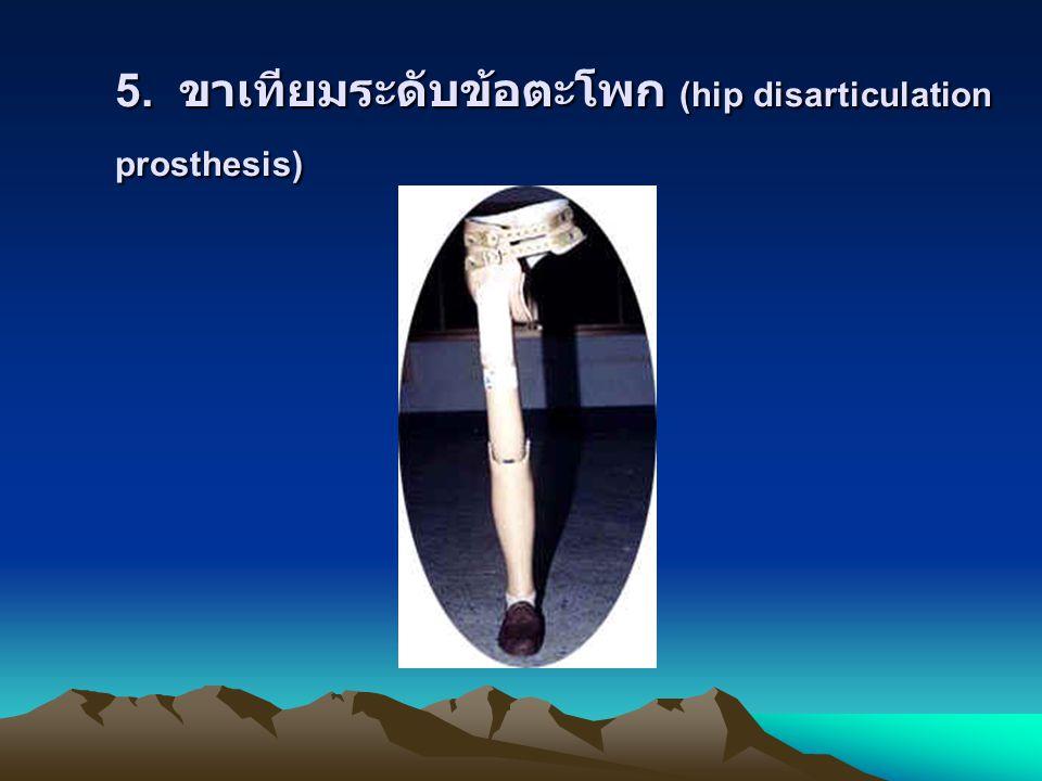 5. ขาเทียมระดับข้อตะโพก (hip disarticulation prosthesis)