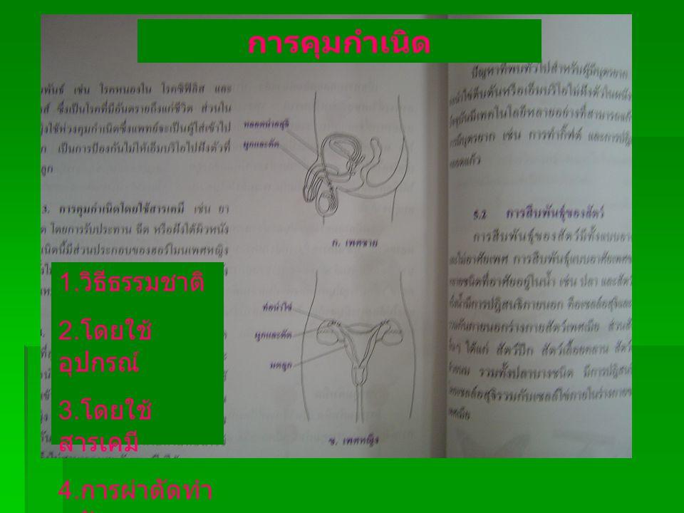 การคุมกำเนิด 1. วิธีธรรมชาติ 2. โดยใช้ อุปกรณ์ 3. โดยใช้ สารเคมี 4. การผ่าตัดทำ หมัน