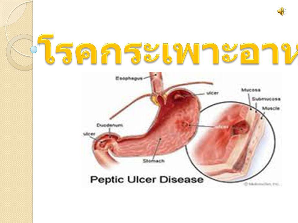 โรคกระเพาะอาหารหมายถึงภาวะที่มีแผลเยื่อบุ กระเพาะ และลำไส้ถูกทำลายถึงแม้ว่าจะเรียกว่า โรคกระเพาะ แต่สามารถเป็นได้ทั้งที่กระเพาะ และลำไส้ ว่า ถ้าเป็นเฉพาะเยื่อบุกระเพาะเรียก >gastritis ( แก็ซทไร - ทิซ ) แต่ถ้าเป็นแผลถึงชั้น ลึก >muscularis mucosa( มัสคิวลาริส มิวโคซา ) เรียก ulcer ( อัล เซอะ ) ถ้าแผลอยู่ที่กระเพาะเรียก >gastric ulcer ถ้าแผลอยู่ที่ลำไส้เล็ก เรียก >duodenal ulcer( ดูโอดีนั่ม อัล เซอะ ) โรค กระเพาะพบได้ทุกวัย โรคกระเพาะอาหารหมายถึงภาวะที่มีแผลเยื่อบุ กระเพาะ และลำไส้ถูกทำลายถึงแม้ว่าจะเรียกว่า โรคกระเพาะ แต่สามารถเป็นได้ทั้งที่กระเพาะ และลำไส้ ว่า ถ้าเป็นเฉพาะเยื่อบุกระเพาะเรียก >gastritis ( แก็ซทไร - ทิซ ) แต่ถ้าเป็นแผลถึงชั้น ลึก >muscularis mucosa( มัสคิวลาริส มิวโคซา ) เรียก ulcer ( อัล เซอะ ) ถ้าแผลอยู่ที่กระเพาะเรียก >gastric ulcer ถ้าแผลอยู่ที่ลำไส้เล็ก เรียก >duodenal ulcer( ดูโอดีนั่ม อัล เซอะ ) โรค กระเพาะพบได้ทุกวัย