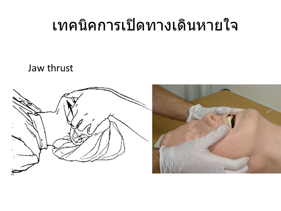 เทคนิคการเปิดทางเดินหายใจ Jaw thrust