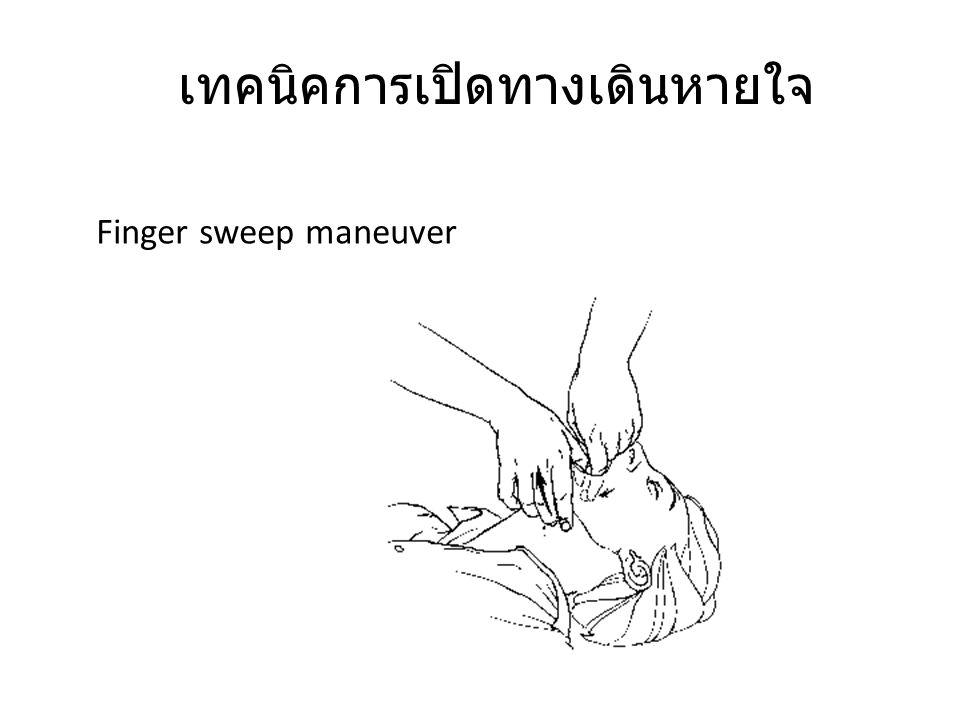 เทคนิคการเปิดทางเดินหายใจ Finger sweep maneuver
