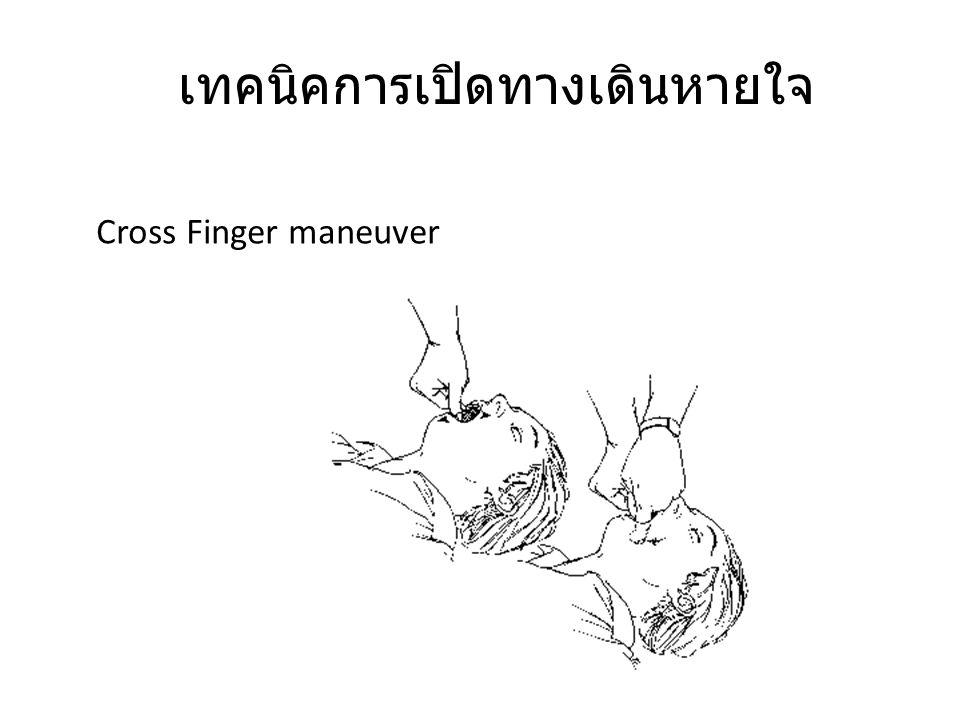 เทคนิคการเปิดทางเดินหายใจ Cross Finger maneuver
