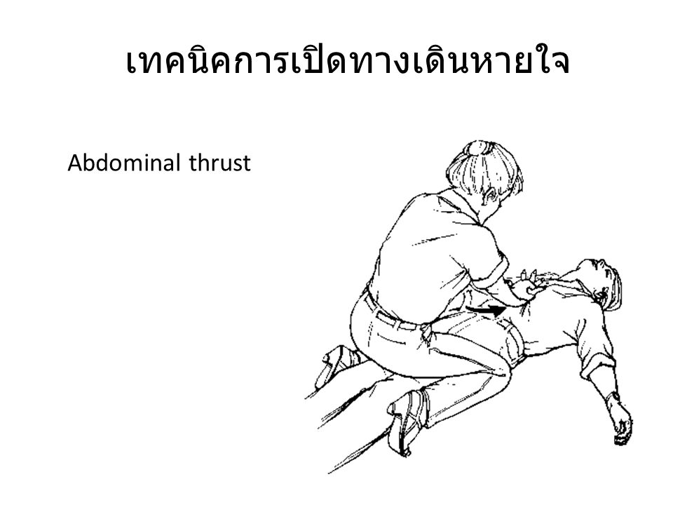 เทคนิคการเปิดทางเดินหายใจ Abdominal thrust