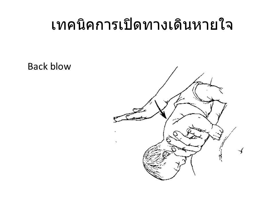 เทคนิคการเปิดทางเดินหายใจ Back blow