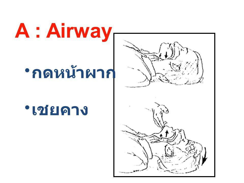 กดหน้าผาก เชยคาง A : Airway