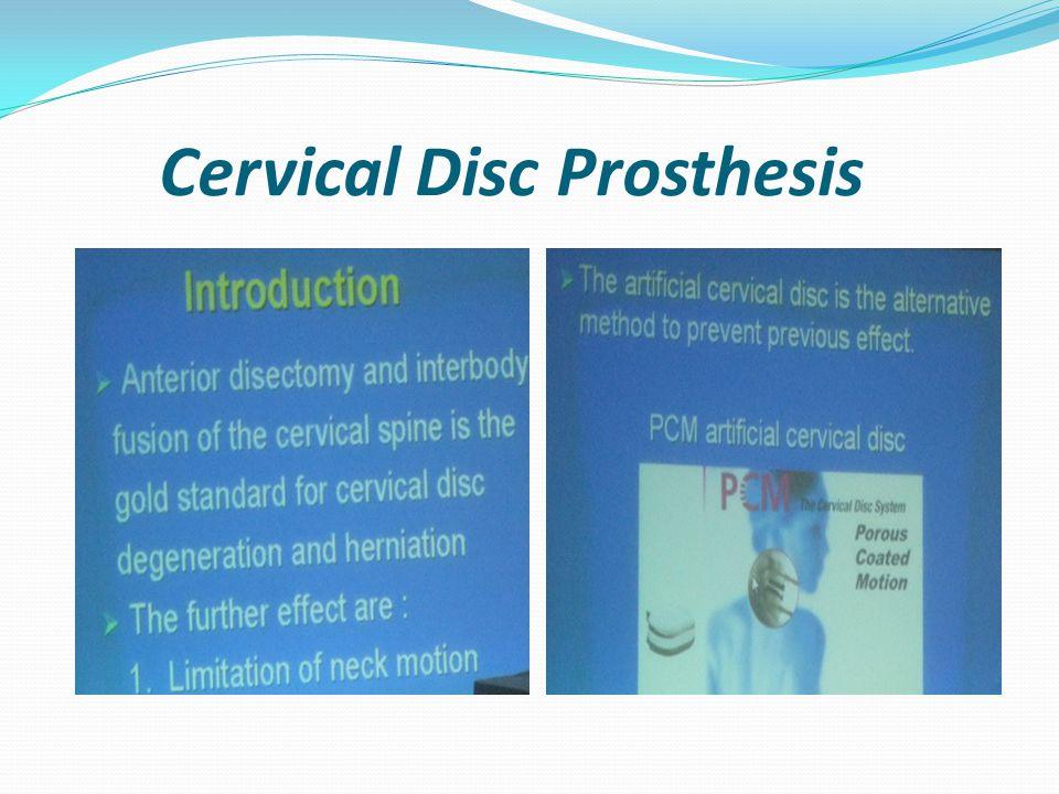 Cervical Disc Prosthesis