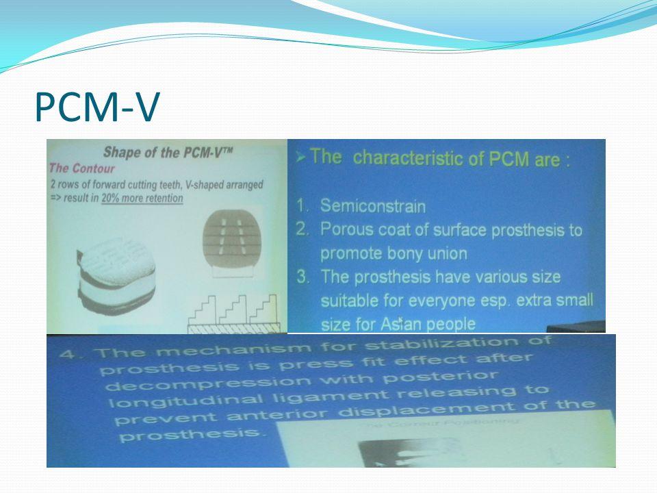 PCM-V
