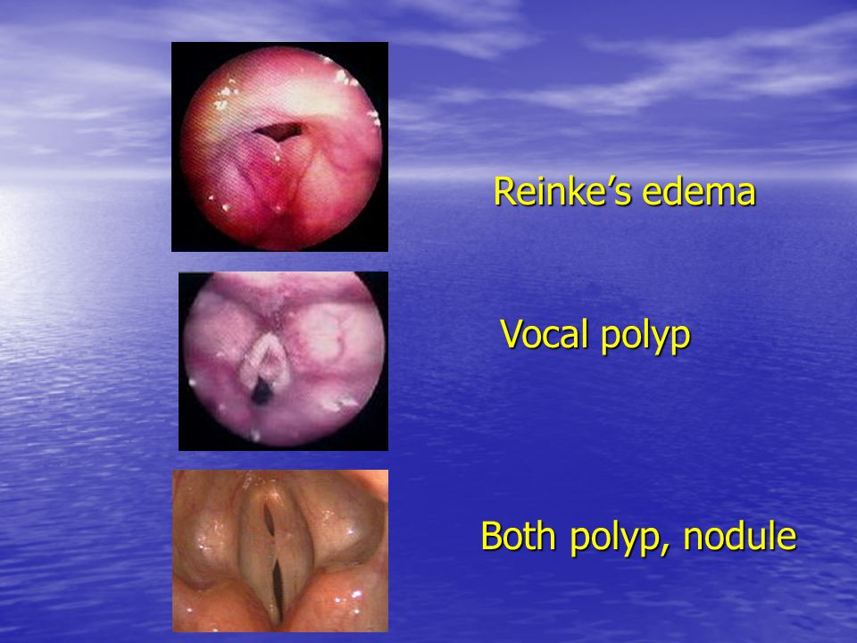 Reinke ' s edema Vocal polyp Both polyp, nodule
