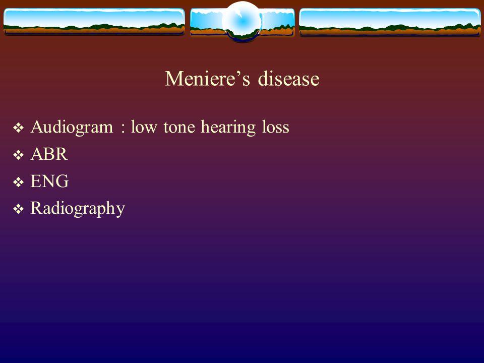 Meniere's disease  Audiogram : low tone hearing loss  ABR  ENG  Radiography
