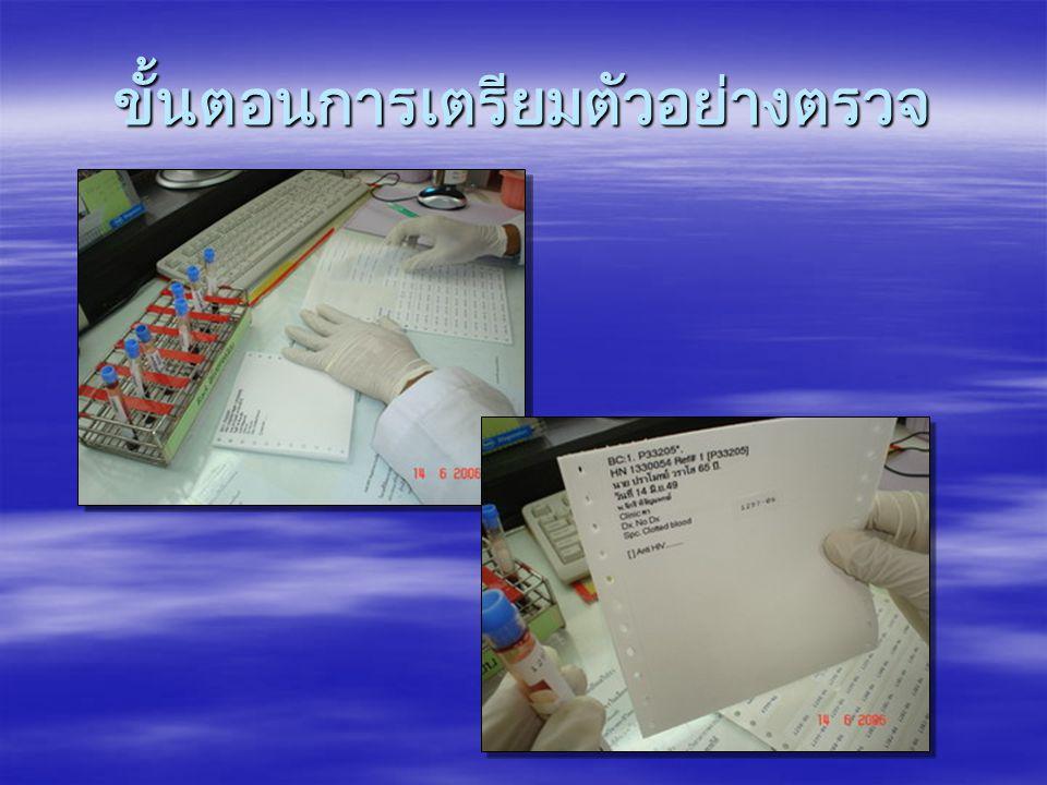 วิธีดำเนินงาน 1.ตัวอย่างที่มีปริมาณ น้อย และส่ง ตรวจหลาย การทดสอบ 2.