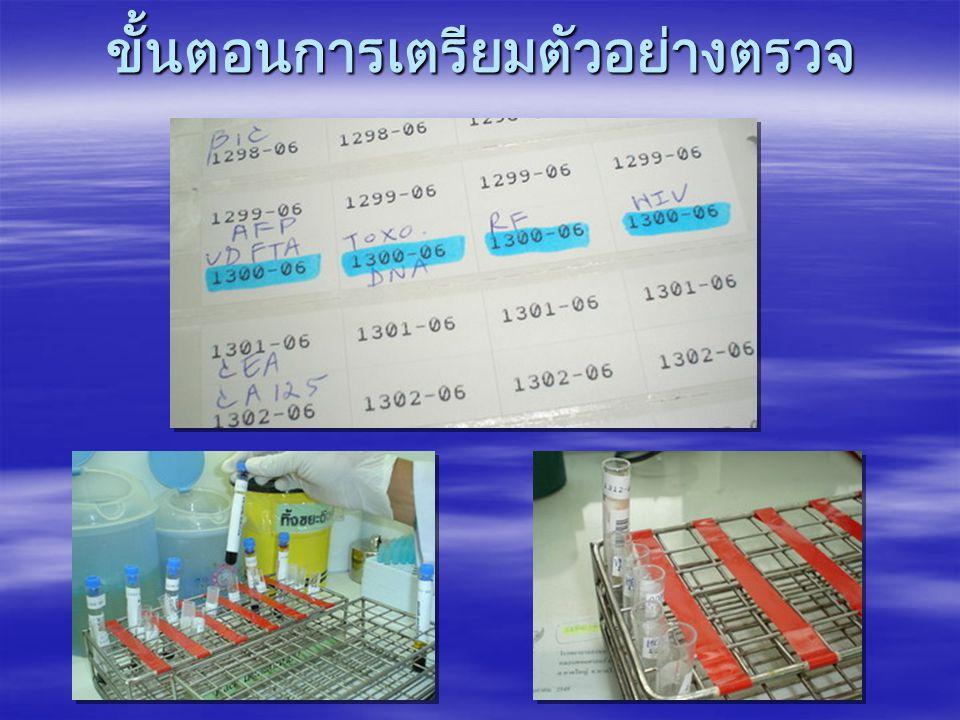 การทดสอบของหน่วยภูมิคุ้มกัน วิทยา รายการ ทดสอบ หลักการ ทดสอบ วันที่ทำการ ทดสอบ ผู้ทำการ ทดสอบ Anti HIV MEIAทุกวัน รุ่งเรือง / สม พร / มาริษา VZV Ab.